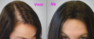 Nouviante: Follicle Therapy nederlands - bestellen, kruidvat