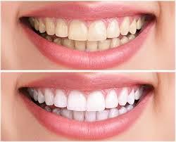 iBright teeth whitening - gebruiksaanwijzing, hoe gebruiken?