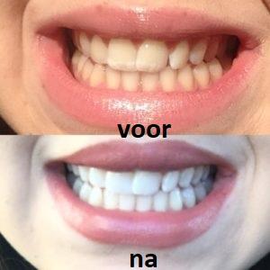 O Dea teeth whitening pen - hoe te gebruiken